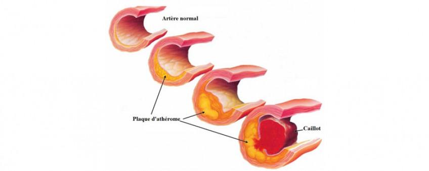 Les effets du tabac sur le coeur